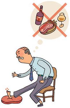 Ácido úrico e gota. Hiperuricémia