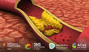 Como controlar o colesterol elevado