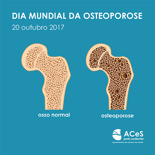 Dia Mundial da Osteoporose 2017